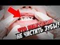 ЧТО БУДЕТ ЕСЛИ НЕ ЧИСТИТЬ ЗУБЫ?,People & Blogs,чистка зубов,если не чистить зубы,здоровье зубов,зубы человека,нужно ли чистить зубы,чем чистить зубы,как чистить зубы,как правильно чистить зубы,зачем чистить зубы,зубы,кариес,гниют зубы,почему гниют зубы,здоровые зубы,почему пахнет изо рта,запах изо р